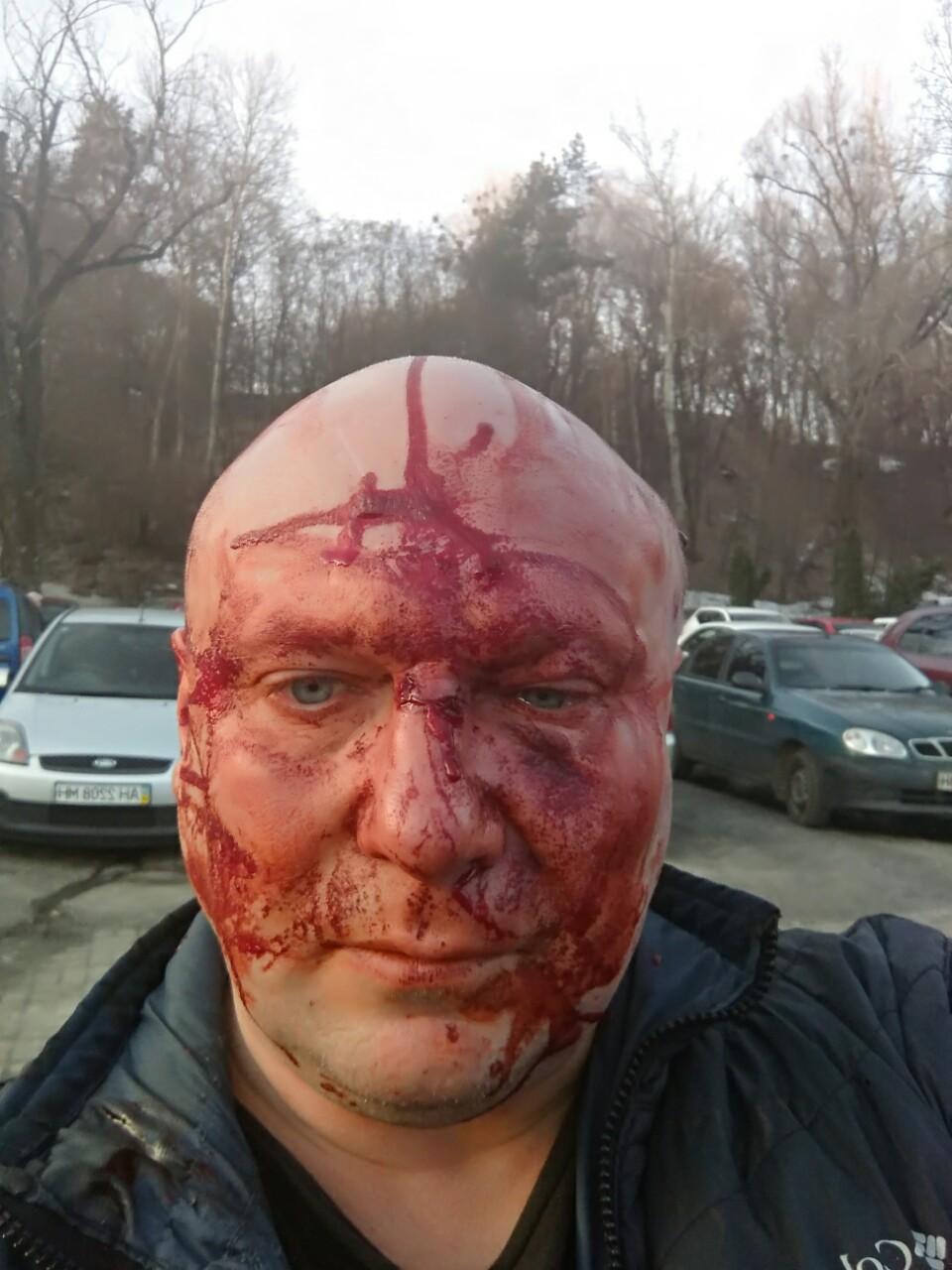 Зоотеррористы в Киеве совершили очередное покушение на убийство адвоката и журналиста Алексея Святогора