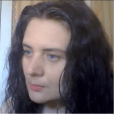 Оксана Матковська страждає на гірсутизм